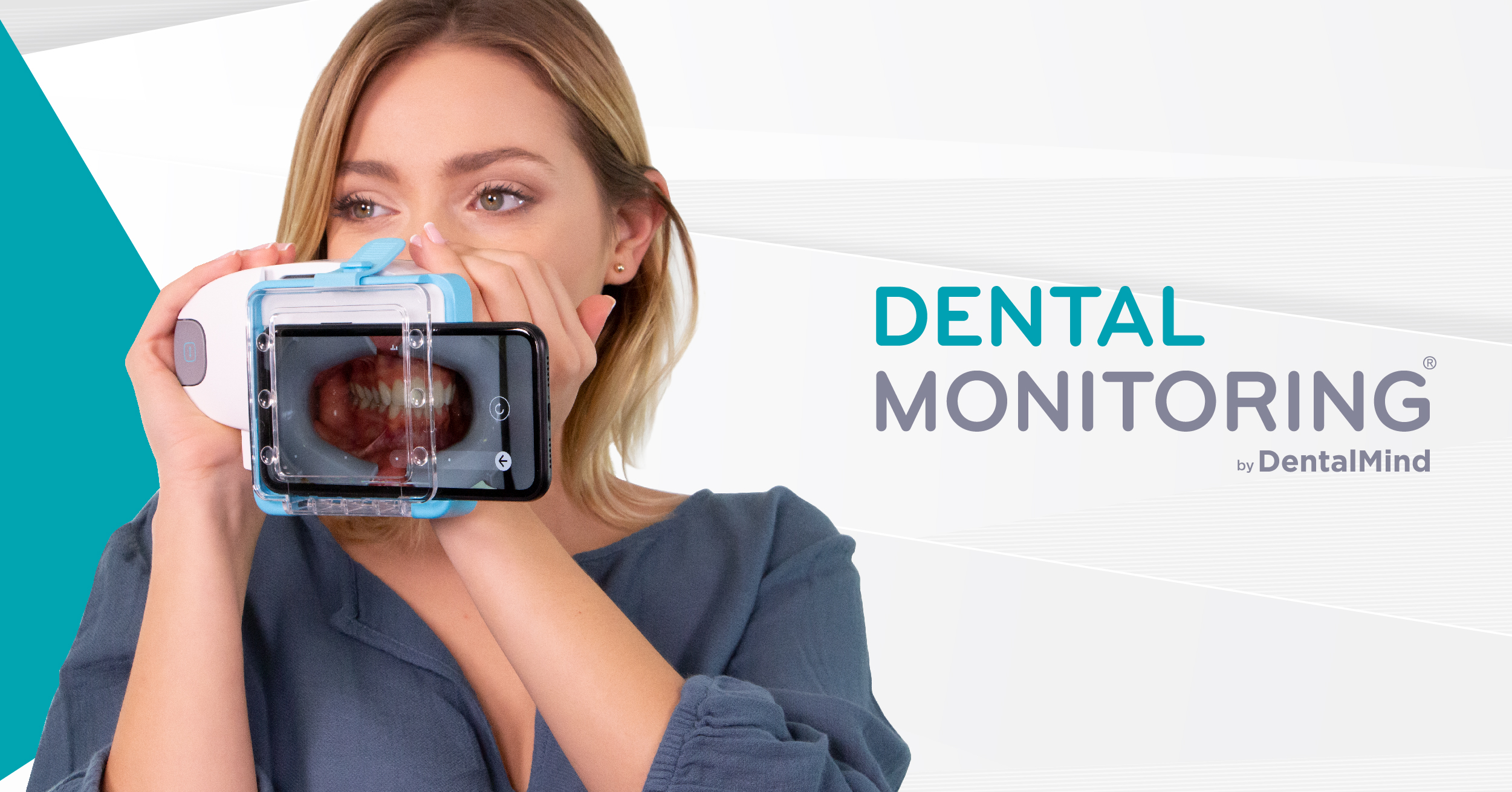 Dental-Monitoring_-010